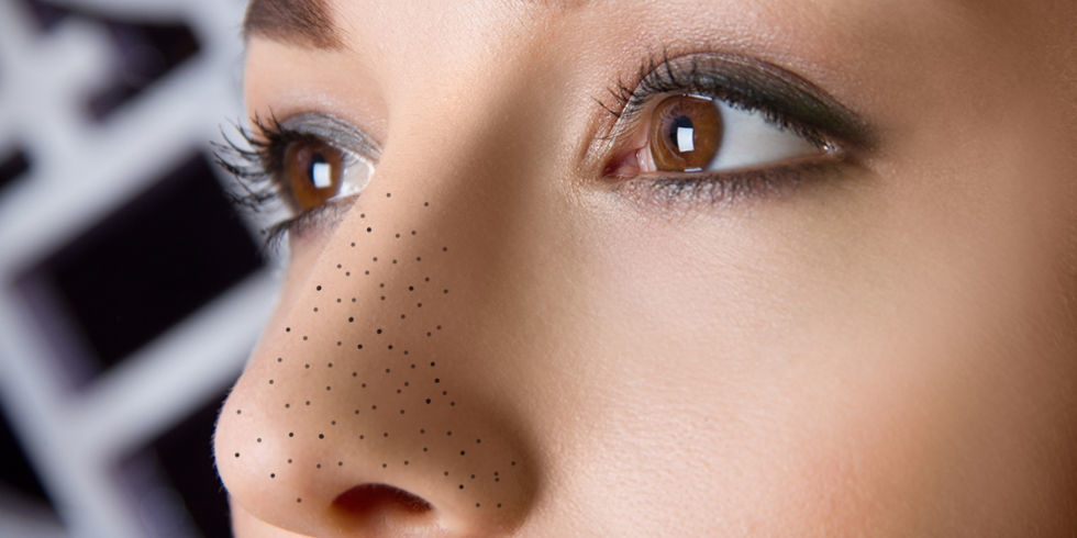 Blackheads are a blocked sweat duct of the skin known medically as an open Comedo. During the teenage most of the people likely to deal with one or the ...